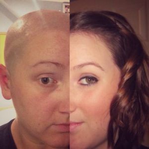Living with Alopecia: How To Accept Yourself - Differences And All
