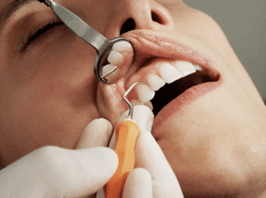 Why Is Dental Care Important